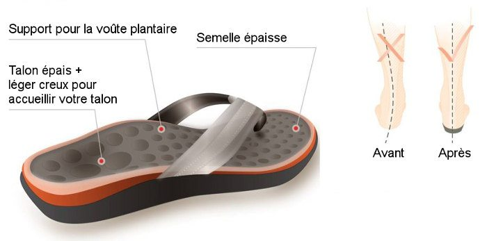 Fasciite plantaire sandales tongs