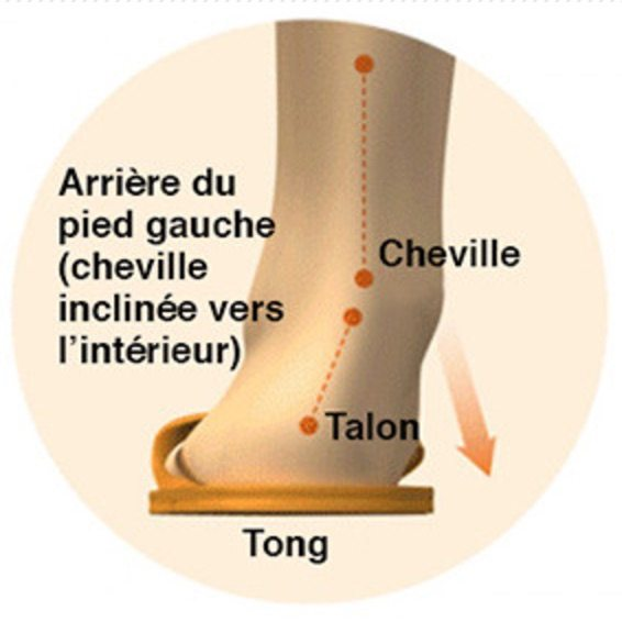 Alignement tongs cheville talon